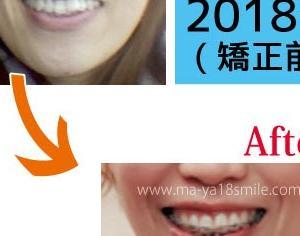 平成最後の大比較!昔と現在の口元の変化・笑顔編