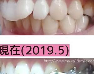 出っ歯の宿命!?ついに「歯紅」とサヨナラ・ダイソーのグロス検証