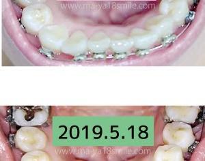 ワイヤー交換しなくても歯は動く!下・装置装着から8ヶ月経過