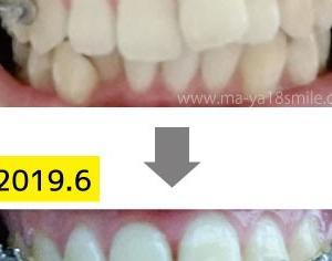 画像で比較!たった1年でどれくらい歯は動くの?
