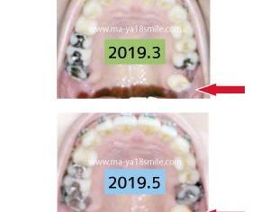 矯正で親知らずを動かす!約5ヶ月での変化を画像で比較