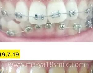 画像で比較!上・装置装着から約半年・出っ歯卒業への道のり