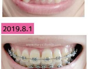 歯並びはこんなに変わる!1年前の今日と比較してみた