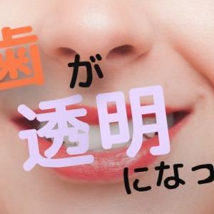 歯が透明になった!【その原因は?治療法はあるの?!】
