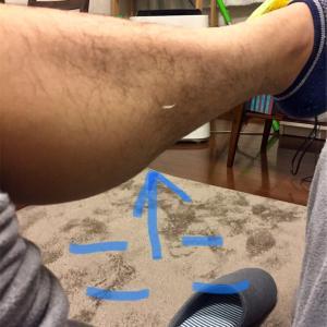 足の甲診察結果 腱鞘炎