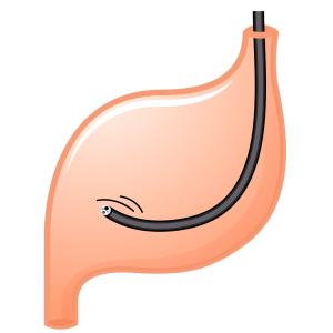 【体験レポート】胃カメラ受診・その始めから終わりまで