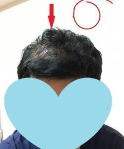 バイト(4) 結果、ついでに頭髪状況