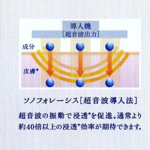 超音波イオン導入(ソノフォレーシス)