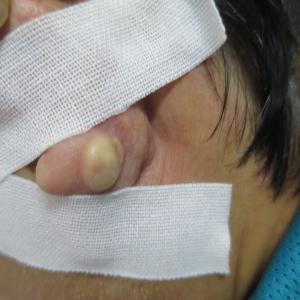 耳たぶの粉瘤摘除手術