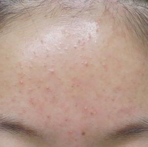 額のニキビ治療の症例です。