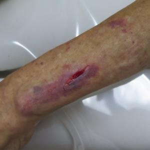 高齢者の打撲による裂創の創傷処理