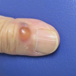 指の粘液嚢腫