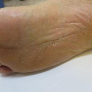足がムズムズ、水虫がかゆくなる季節ですね。