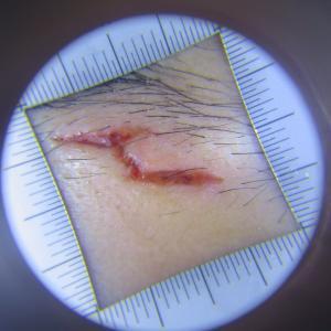 上眼瞼の裂傷の縫合手術