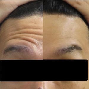 額のボトックス注射(Botox injection on the forehead wrinkles)
