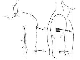 筋電図の進め方⑪:腋窩神経