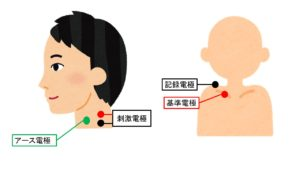 筋電図の進め方⑮:副神経