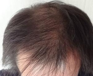 【2eシャンプー洗髪口コミ】2019年1月6日頭髪画像