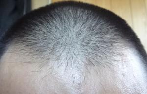 フォリックスは髪が固まる!?FR02.05.07.10.12.15が顕著!!理由&対策は!?