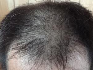 【薄毛の散髪頻度】私は約半年です【画像&データあり】