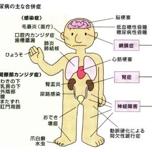 神経、眼、腎臓に合併症