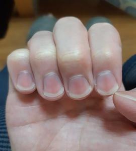 爪の形って綺麗になるの知ってた?爪の手入れの仕方