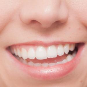 歯を白くする方法を中学生に紹介!市販の食べ物やアルミニウムでホワイトニング!?
