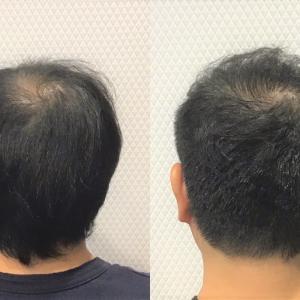 M字・頭頂部の薄毛に悩む30代男性に似合う髪形!