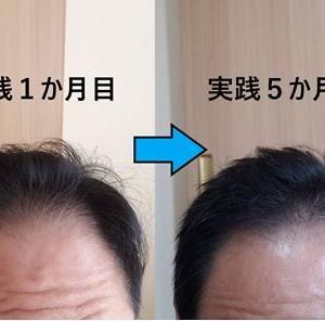 アルカナ発毛メソッドの効果はやはり凄かった!全年齢対象、薬無しで薄毛改善