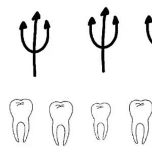 歯医者さんに言われた先天性欠如