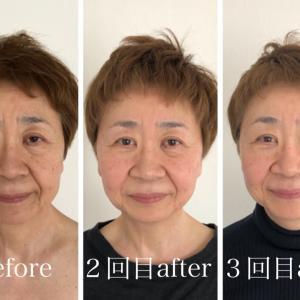 大阪枚方くずは 60代の小顔矯正で 首が長くなったみい!