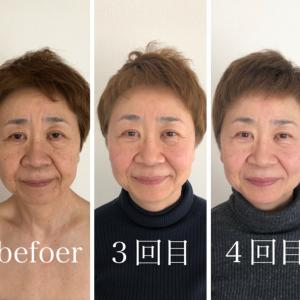 大阪枚方くずはの小顔矯正で鼻の下も短くなる
