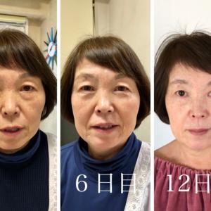 大阪枚方くずは 母68歳の決意!