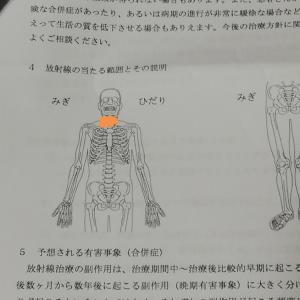 放射線治療とその後の体調…