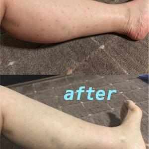脚太に悩みすぎてはげそうなので、ふくらはぎボトックスしてみた(2)