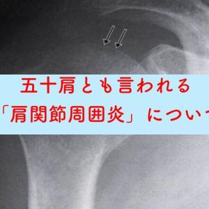 五十肩とも言われる「肩関節周囲炎」について解説!