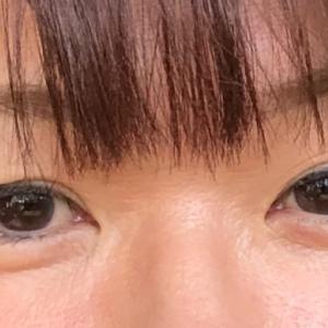 眼瞼下垂の手術