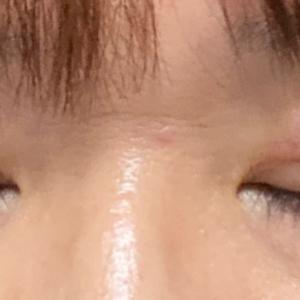 眼瞼下垂術後 3日目