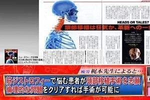 頭部移植にAI癌判定! 最新医療の実情