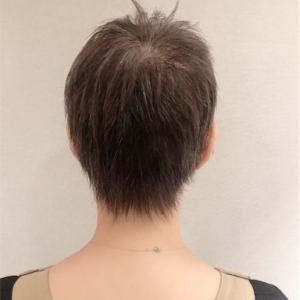 抗がん剤治療〜脱毛との戦い