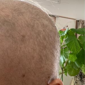 下まつ毛1㎜、眉毛うっすら😆伸びてくる兆しが!!