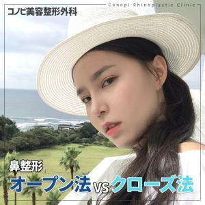 鼻手術【オープン法VSクローズ法】