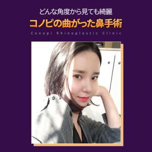 【曲がった鼻手術】鼻の非対称改善法!!