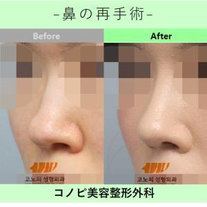 ✩コノピの鼻の再手術✩