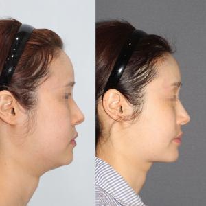 ダブルフィットリフト、顎下の脂肪吸引2か月目