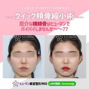 【韓国整形】早くて、効果抜群のクイック頬骨縮小術☆