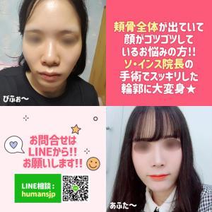 【韓国整形】横 前 斜め45度の頬骨!!