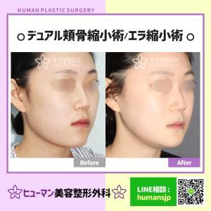 【韓国整形】頬骨縮小+エラ縮小=小顔の完成です☆彡