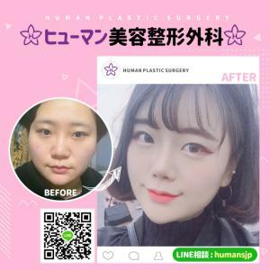 【韓国整形】ダウンタイムが短い頬骨縮小術