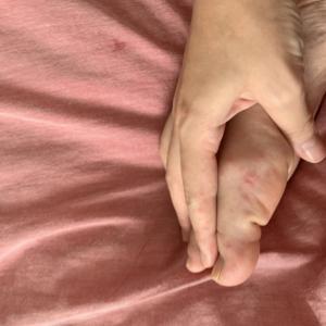 大人の手足口病は長引く。写真有り